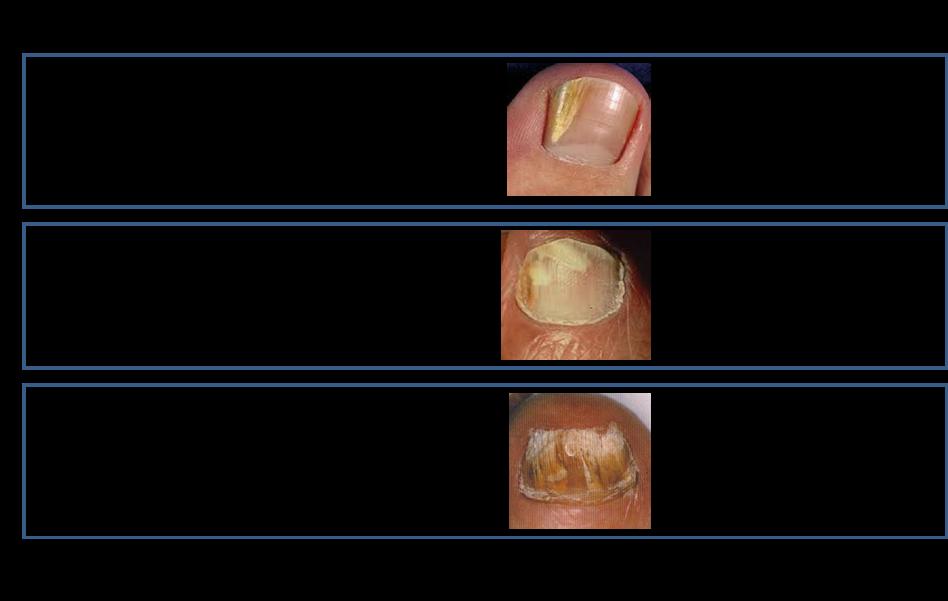CSPA - Nail Fungus - Results from #1