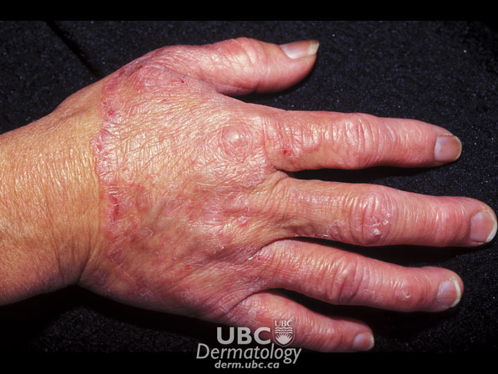 cspa fungal infections