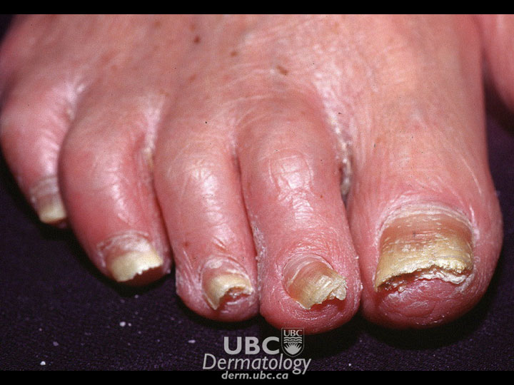 CSPA - Nails - Other Disorders